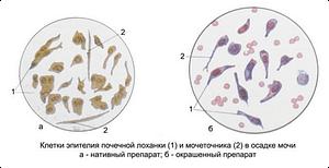 Эпителиальные клетки