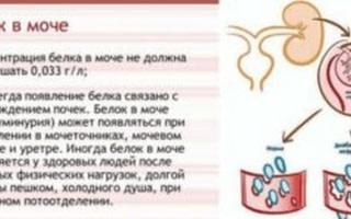 Белок в моче во время беременности