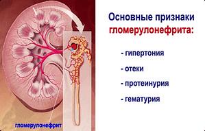 основные симптомы гломерулонефрит