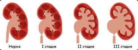 стадии гидронефроза