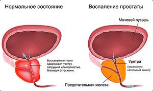 мутная моча и заболевание