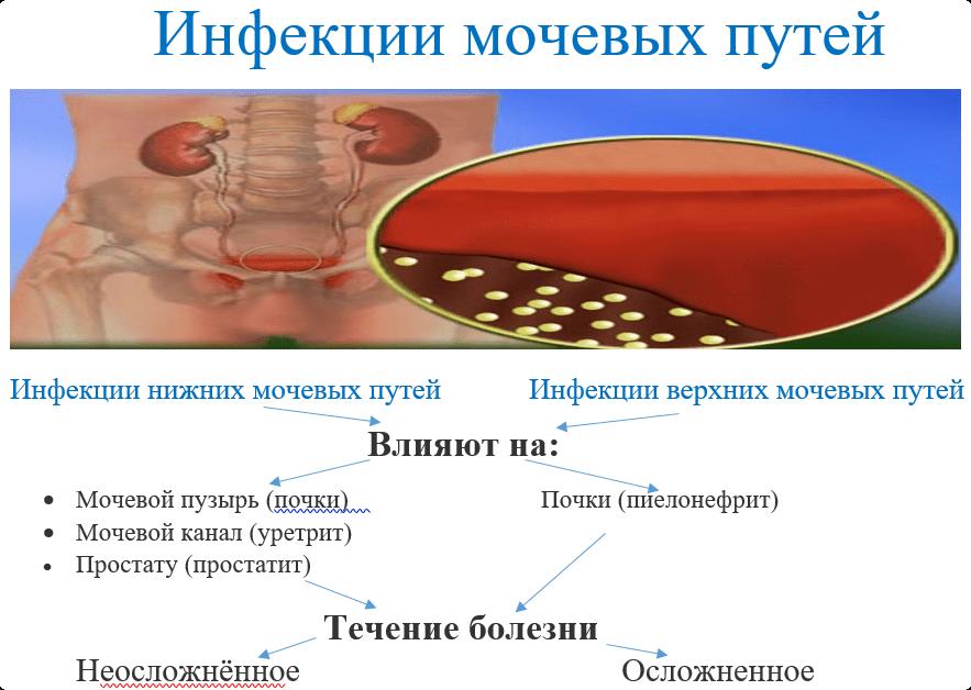 инфекции мочевых путей