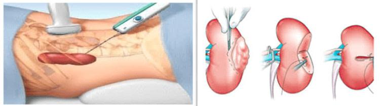 способы хирургического удаления кисты почки