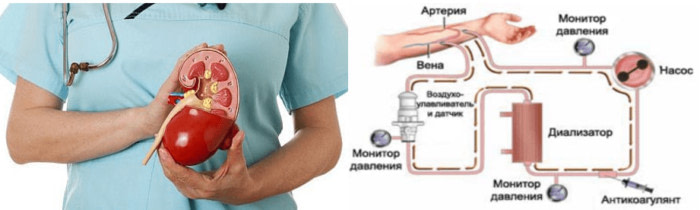 Гемодиализ почек