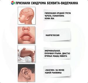 Синдром Беквит-Видемана
