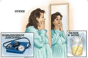 симптомы белка в моче