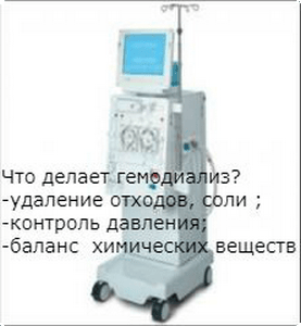 что делает гемодиализ