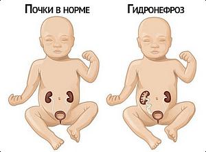 Гидронефроз почек у новорожденных