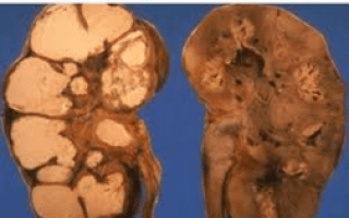 Туберкулез почек: этиология, причины, лечение
