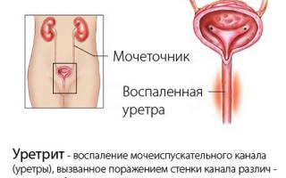 Уретрит: симптомы, лечение, осложнения, группа риска