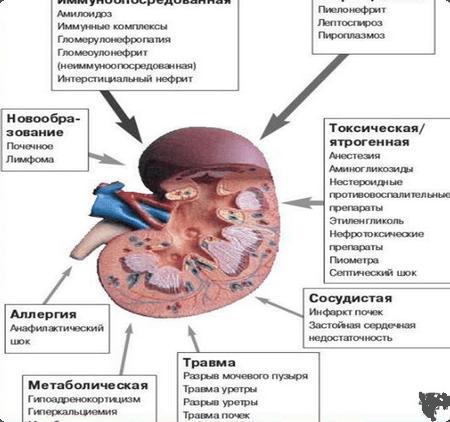 причины инфаркта почек