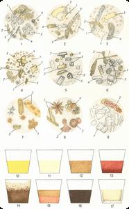 Микроскопическое исследование мочи