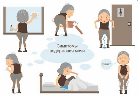 симптомы недержания мочи