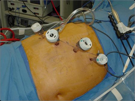 подготовка к лапароскопии