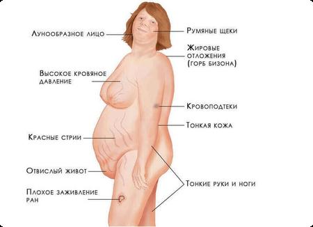 симптомы аденомы надпочечников