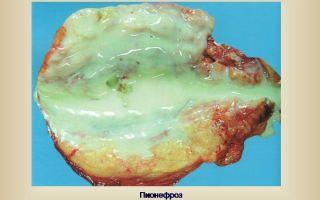 Пионефроз почек: формы, симптомы, диагностика, лечение