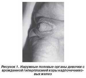 симптомы гиперплазии надпочечников
