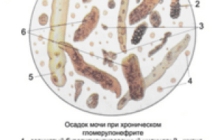 Микроскопическое исследование осадка мочи