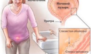 Цистит при беременности: симптомы, лечение и причины