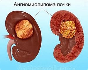 ангиомиолипома почки