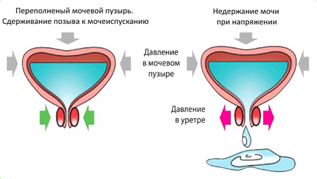 физиология недержания
